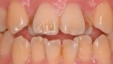 東京のホワイトニング専門歯科の術前症例写真