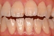 東京のホワイトニング専門歯科のホワイトニング術前写真