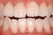 東京のホワイトニング専門歯科の術後症例写真