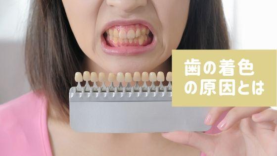 歯の着色の原因とは