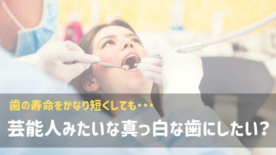芸能人みたいな真っ白な歯にしたい?
