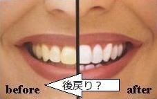 東京のホワイトニング専門歯科の後戻りの話