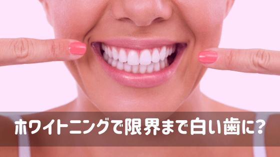 ホワイトニングで限界まで白い歯に?