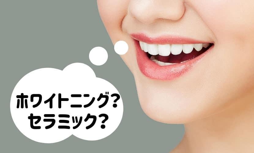 芸能人の白い歯はホワイトニング?