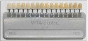 東京のホワイトニング専門歯科が教える歯の色測定