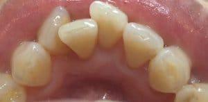 東京のホワイトニング専門歯科のクリーニング後