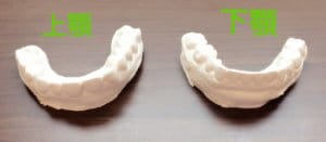 東京のホワイトニング専門歯科のホームホワイトニング