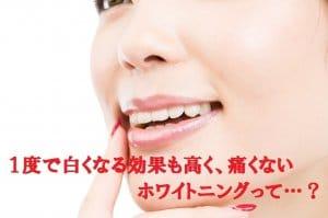 東京の1回で白い歯になるホワイトニング専門歯科