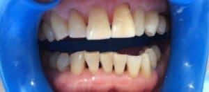 東京のホワイトニング専門歯科施術後