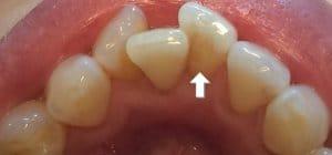 東京のホワイトニング専門歯科のクリーニング前