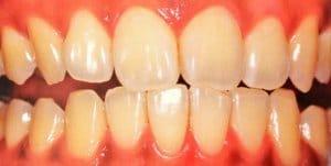 東京のホワイトニング専門歯科の術前写真