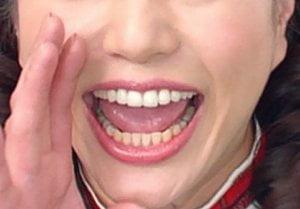 芸能人の上下違和感のある歯