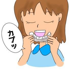 ホワイトニングトレーに歯磨き剤を入れて付ける