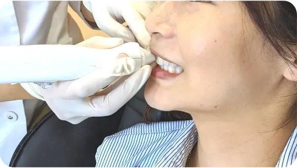 歯の色測定