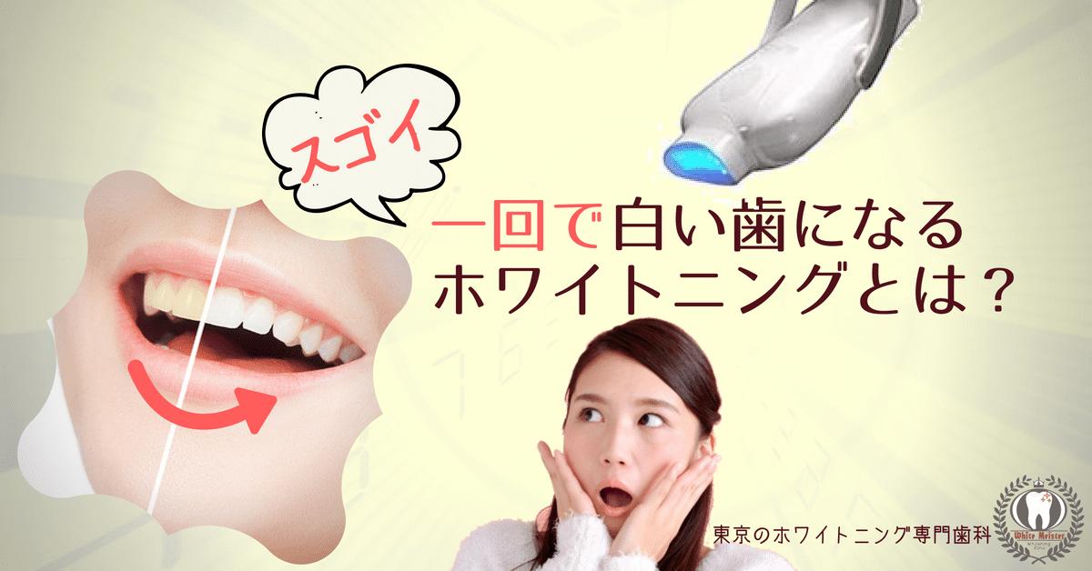 一回で白い歯になるホワイトニングとは?