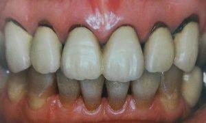 補綴された歯