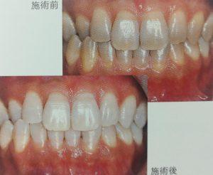 テトラサイクリン歯の術前術後