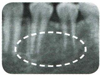 12歳の歯根