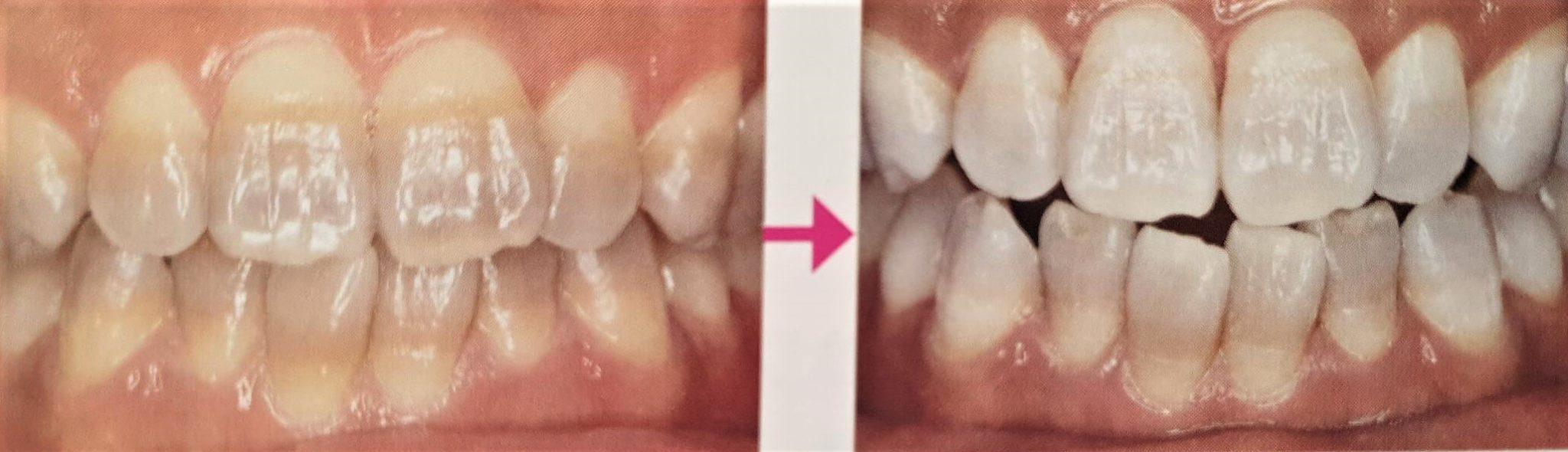 テトラサイクリン歯のホワイトニング例
