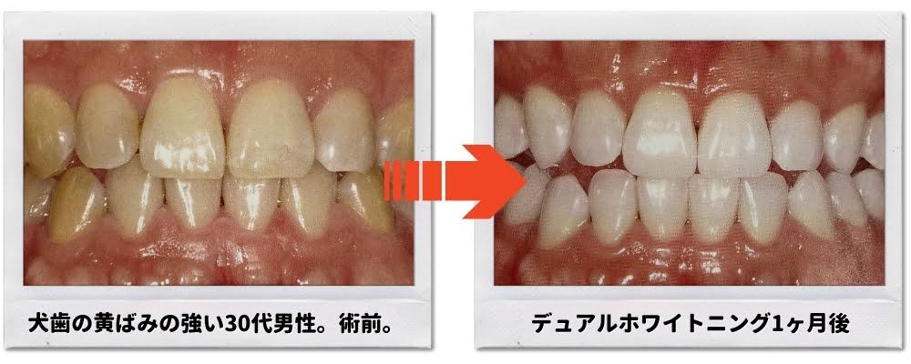 犬歯のホワイトニング後の変化