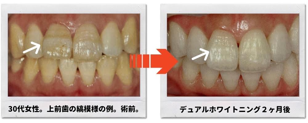 歯の縞模様がホワイトニングで改善した例