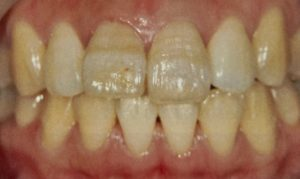 歯の縞模様