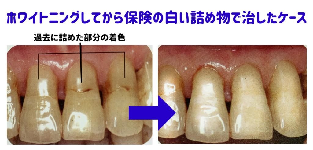 ホワイトニングと歯の根の詰め物のやり直し症例