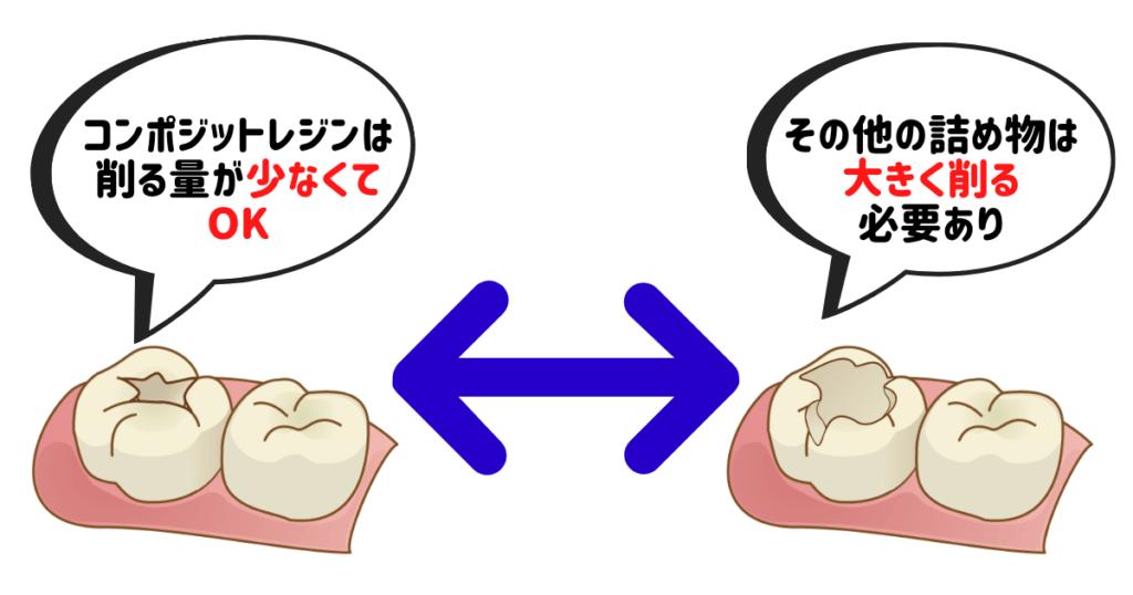 歯を削る量の違いのポイント